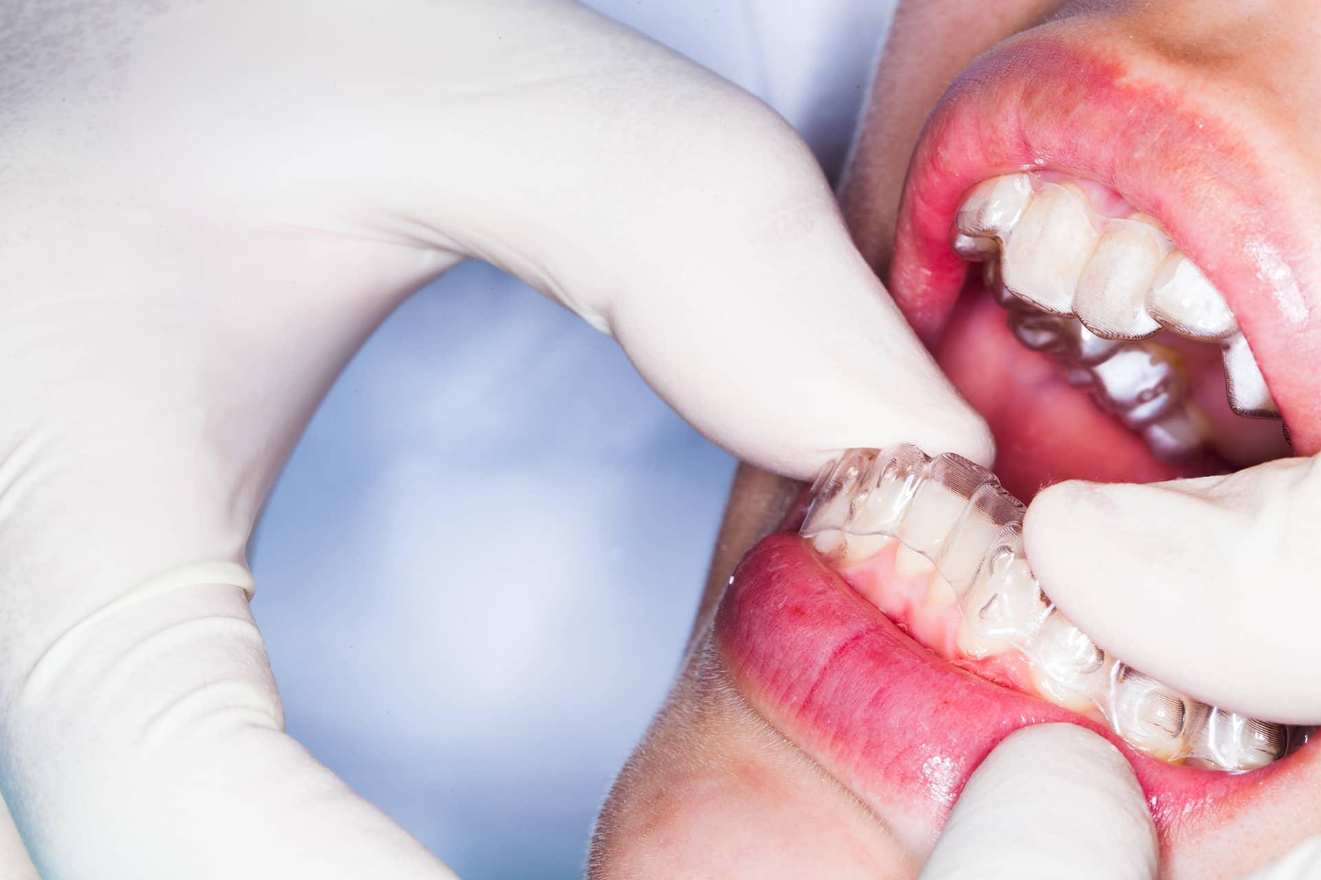 La ortodoncia invisible requiere de la monitorización del ortodoncita