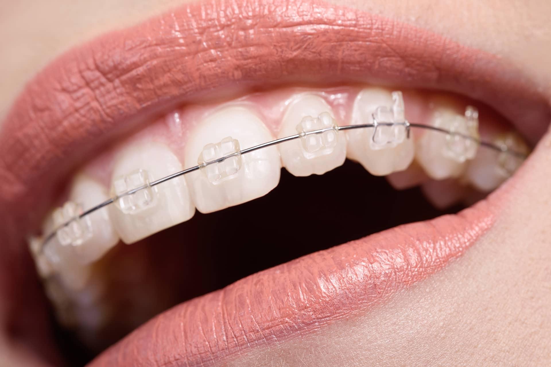 Los backets son una gran opción en los tratamientos de alineamiento de dientes tanto en niños como en adultos